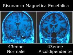 risonanza-cervello-alcolista